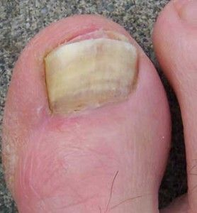 Home remedies for a toenail fungus...gross...but it has to be said