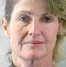 A Super Facelift Without Surgery Crinkle Smoothing Resolution: Techniques To Lighten And Heal Nasal Lines