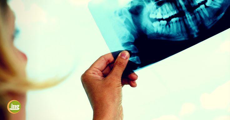 Jeder Heimwerker kennt das: Wer Dübel und Schraube fest miteinander verbinden möchte, der benötigt ein feste Wand. Ohne ein stabiles Fundament geht es einfach nicht. Das gilt in gleichem Maße für Zahnersatz, der auf Implantaten befestigt werden soll. Wenn der Kieferknochen nicht genügend Substanz für die künstliche Zahnwurzel bietet, muss nachgeholfen werden. Mit einem Knochenaufbau schaffen erfahrene Zahnärzte, Implantologen und Oralchirurgen die Voraussetzungen für eine Implantation.