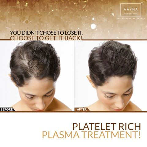 PRP Therapy works with your body's natural healing abilities to restore hair and stop hair loss. To know more click on the link below: http://www.aaynaclinic.com/prp