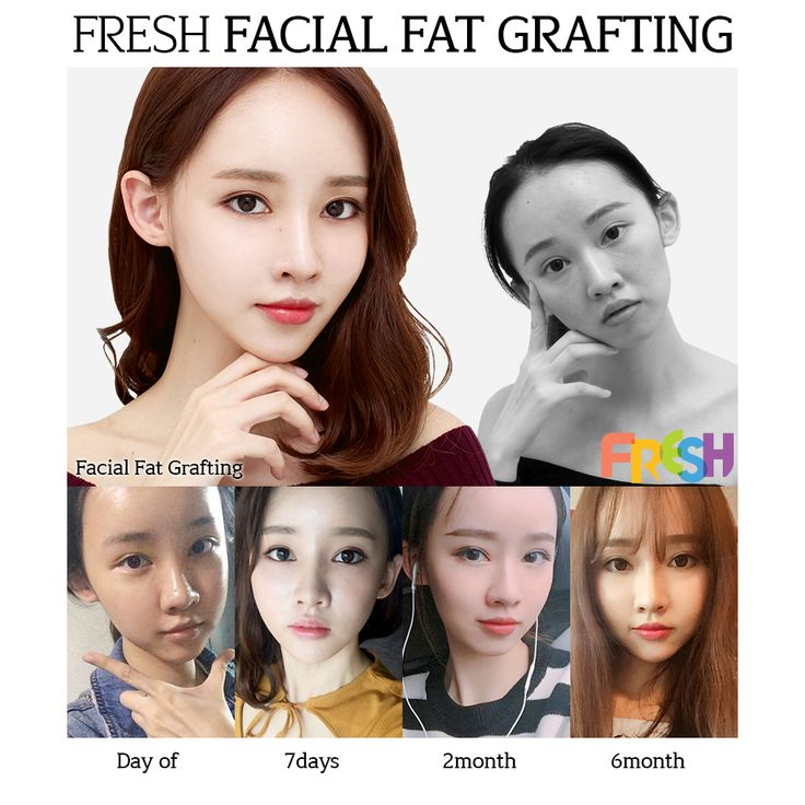Fresh plastic surgery in south korea korean plastic surgery  the best plastic surgery in Korea the best plastic surgery clinic in korea korean surgery before after   top korean plastic surgery plastic surgery  cosmetic surgery facial fat grafting  before and after  baby face vline face
