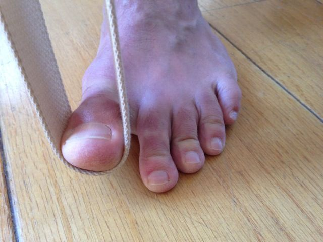Q Do You Have Any Posts On Yoga And Hallux Limitus Especially For Those Also With Back Issues Osteoporos Hallux Osteoarthritis Rheumatoid Arthritis Symptoms