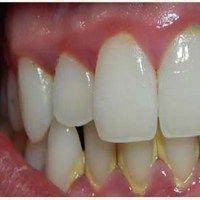 Szabadulj meg a fogkőtől egy egyszerű hatóanyag segítségével