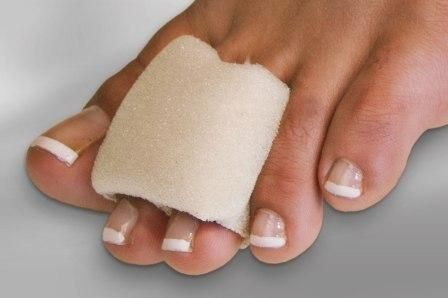 Corns on Toes Causes, Pictures & How to Hide, Treat Soft Corns