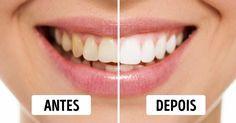 9 truques para ter dentes brancos e um sorriso de Hollywood