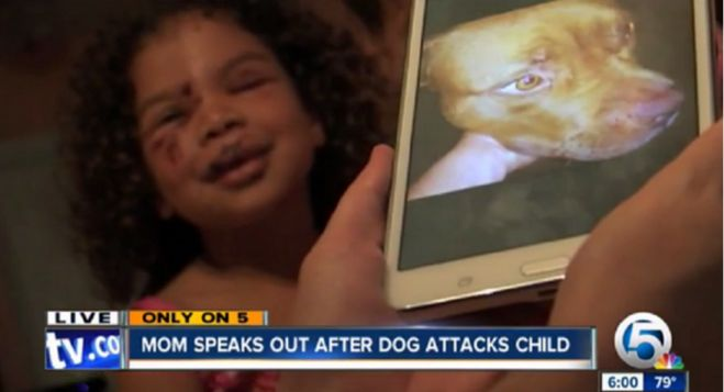 This little girl was SAVED by a Pit Bull when a labrador retriever attacked her!  Click photo to read article.