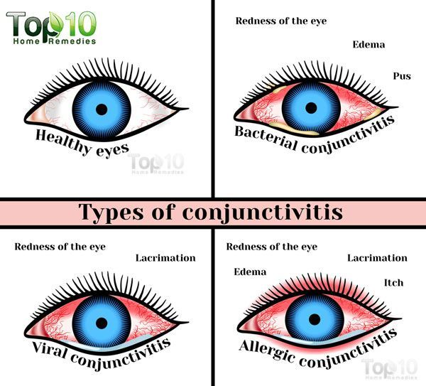 Home Remedies For Conjunctivitis Pink Eye In Children Pink Eye