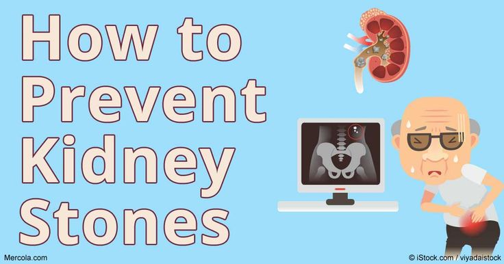 Kidney stones are a painful condition that occurs when calcium oxylate crystals…