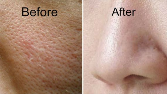 Vanish your large skin pores in just few seconds !!