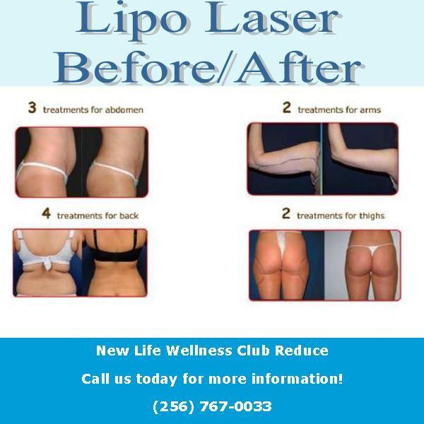 Post Liposuction Treatment