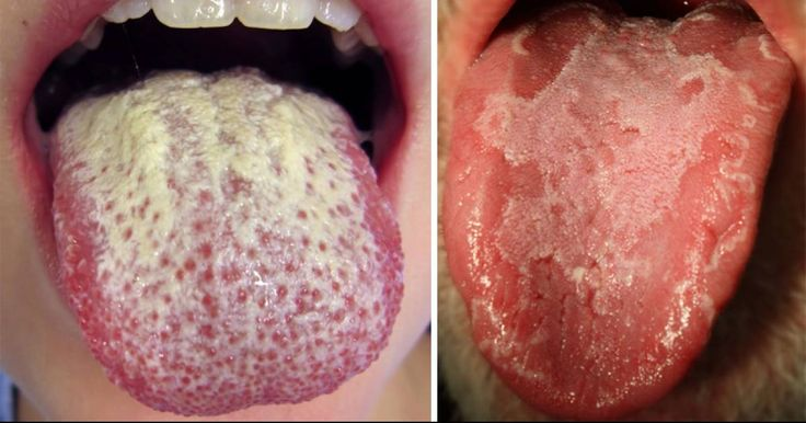 You know that a healthy tongue is pink. So waking up one day and noticing a white coating on the surface of your tongue can be pretty alarming. The tongue is covered with papillae – small nodules o…