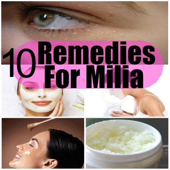 Make sure you LIKE DIY Home Things on Facebook with over over 20.000 followers and growing... Milia is a condition in which little bumps – yellow or white in color – appear under the eyes and around the eyes. Sometimes milia, also known as milk spots, appear on forehead, nose, cheeks and chest. Milia are […]
