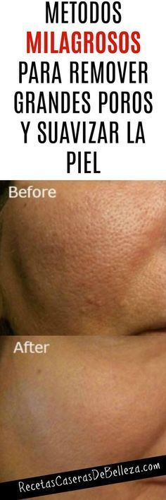 Remover los Grandes Poros