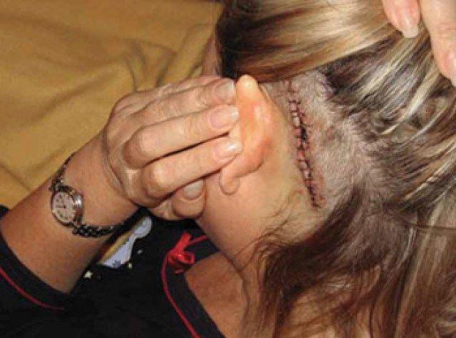 Ella Burakowski, four days after microvascular decompression surgery