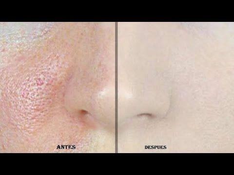 Este remedio elimina los poros de la cara en segundos… Quedarás sorprendida - YouTube