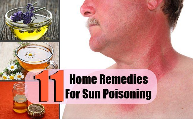 11 Home Remedies For Sun Poisoning