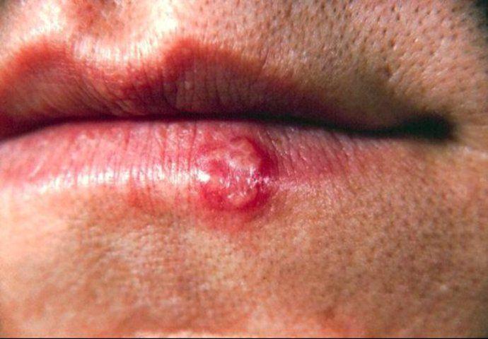 #Gegen Herpes hilft auch Stress-Abbau - UNTERNEHMEN-HEUTE.de: Gegen Herpes hilft auch Stress-Abbau UNTERNEHMEN-HEUTE.de mp Groß-Gerau -…