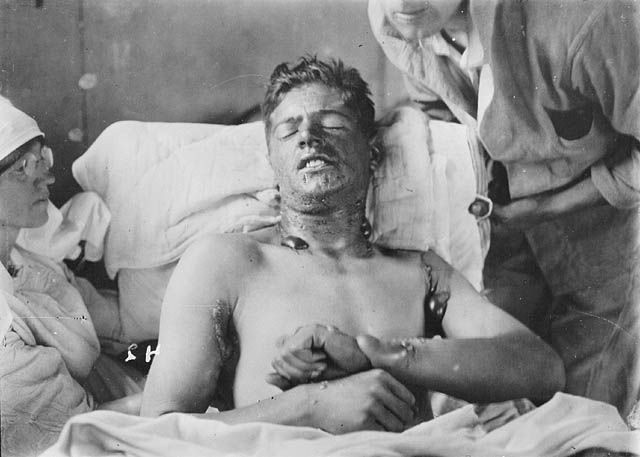 Canadian solider from World War I, suffering from mustard gas burns.