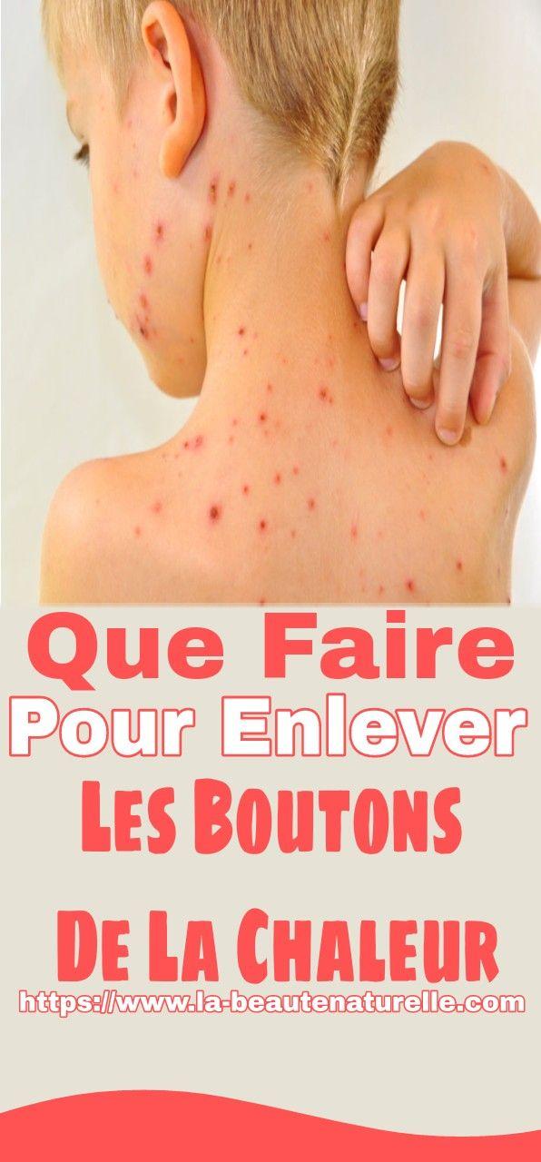 Boutons, rougeurs et autres problèmes de peau   Mieux