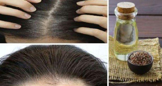 Des cheveux blancs ? Voici des remèdes naturels qui vont leur redonner leur couleur initiale tout en les renforçant.