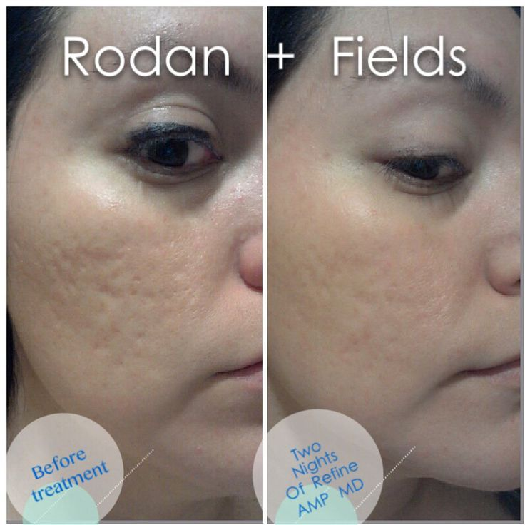 amp md roller  acne scars and stretch marks on pinterest