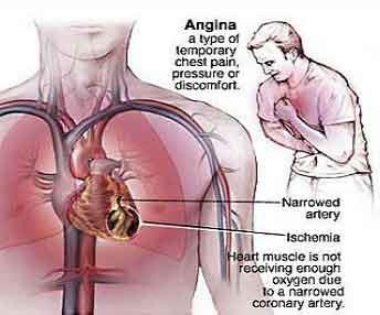 20 best angina pectoris images on pinterest, Skeleton