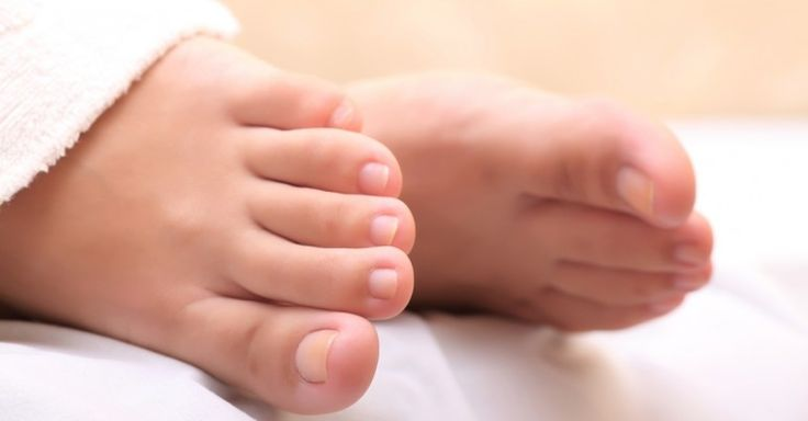 Natural Home Remedies For Yellow Toenails