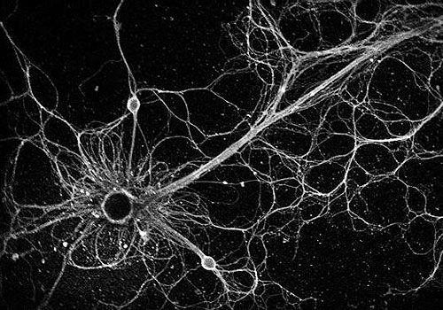 17 Best Ideas About Brain Neurons On Pinterest Neurons