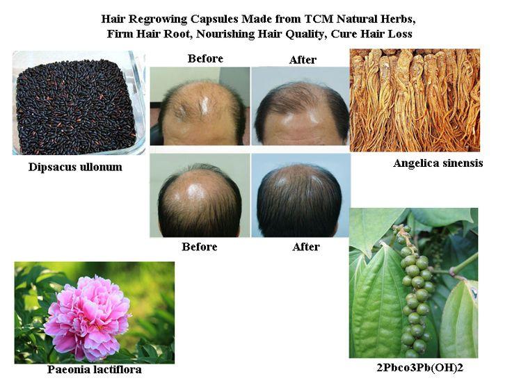 Волосы Отрастут Формула из TCM Натуральных Трав, фирма Корень Волоса, Nourishing Hair Quality, лечение Выпадения Волос