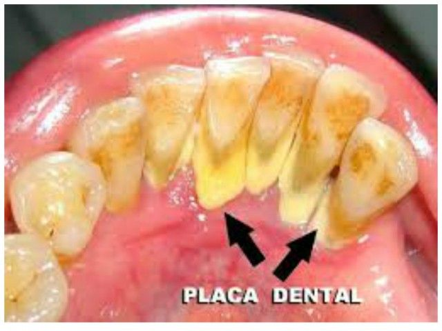 Como Eliminar La Placa Dental o Sarro En 5 Minutos Sin Ir Al Dentista. Conozca como eliminar las placas dentales o sarro de forma casera, facil y eficaz....