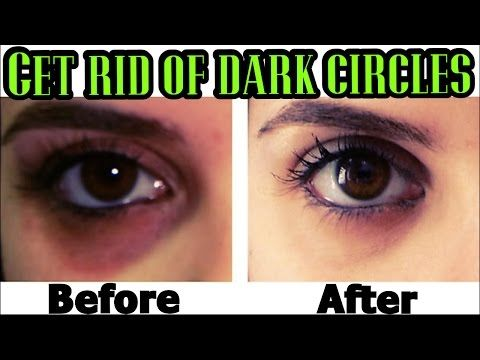 How to Remove Dark Circles Naturally in 3 Days (100% Results) - YouTube