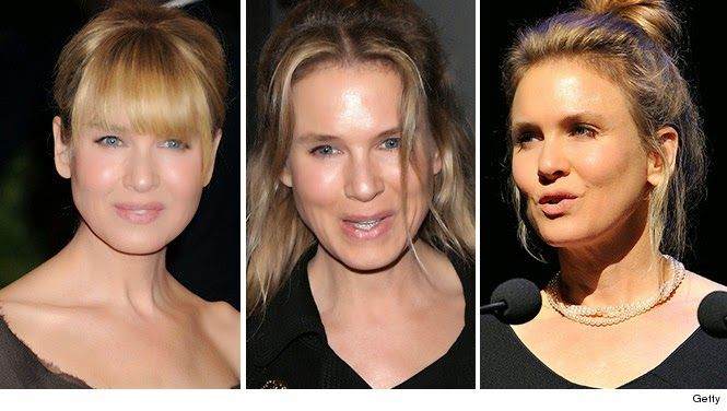 Renée Zellweger and Beauty. Read more: http://dd-idham.blogspot.com/2014/10/renee-zellweger.html