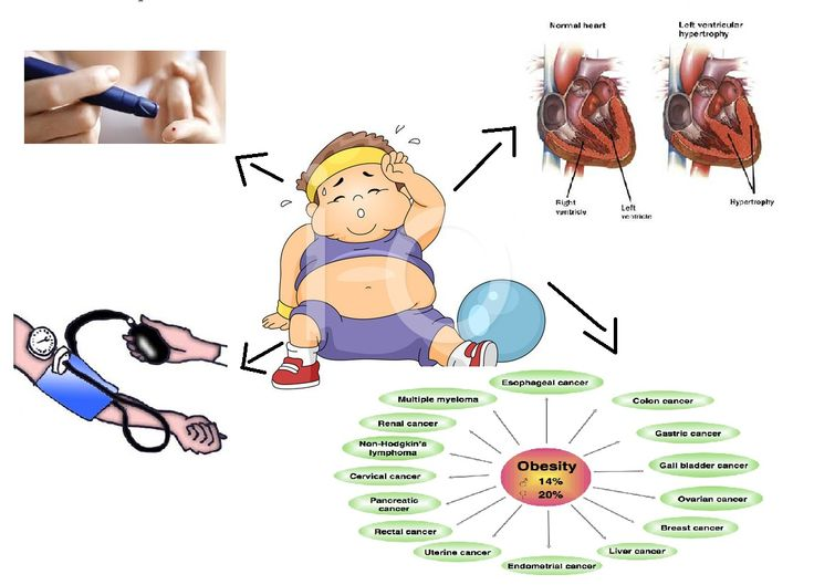 childhood obesity causes and effects essay sample