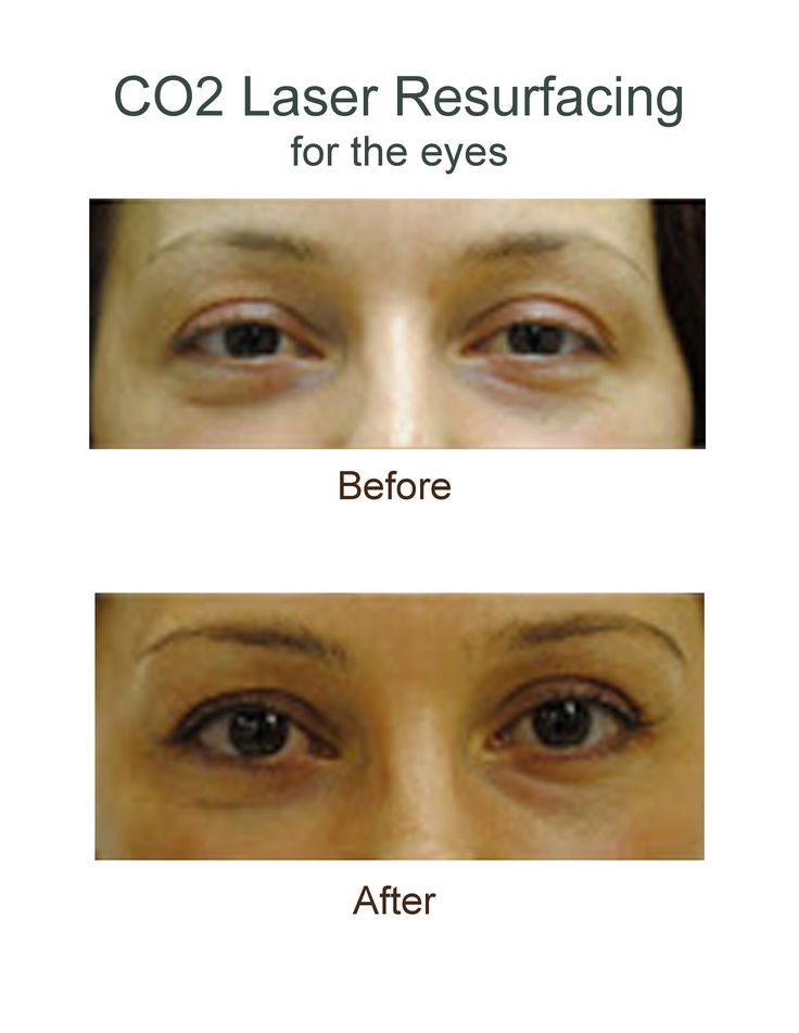 Before and after images showing the results from CO2 Laser Resurfacing for the eyes. #co2 #laserresurfacing #results #beforeandafter