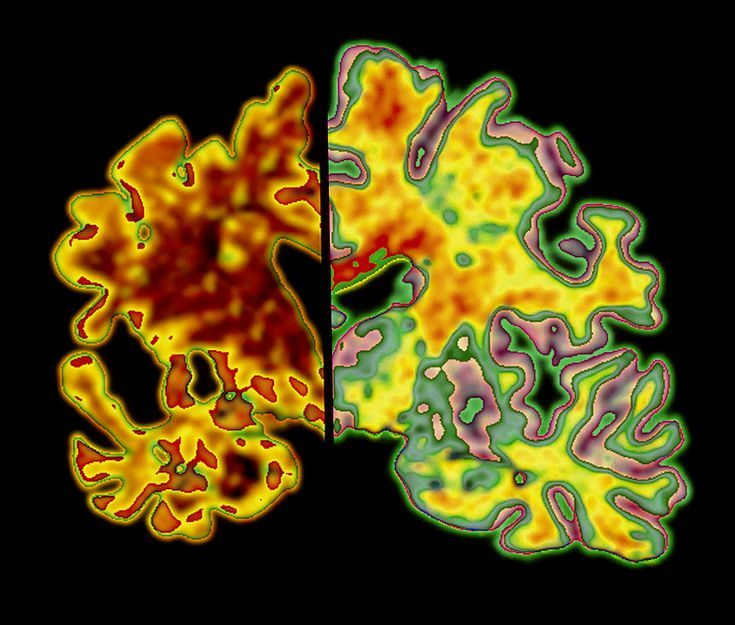 Cerebral Atrophy: Can You Prevent Your Brain from Shrinking?