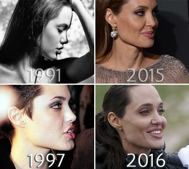 Angelina Jolie chin before and after photo