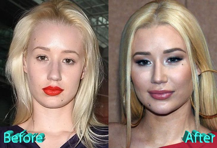 Iggy Azalea Before And After Cosmetic Surgery Iggy Azalea Plastic Surgery Celebrity Plastic Surgery Cosmetic Surgery