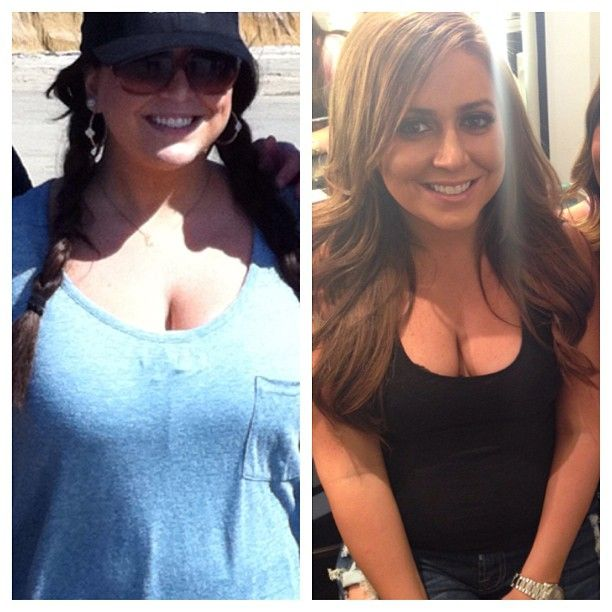 Lauren Manzo Reveals Before and After Surgery Pics