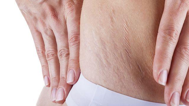 علاج تشققات البطن الحمراء تعاني الكثير من السيدات من مشكلة التشققات في البطن حيث ان تلك المشاكل شائعة بشكل كبير جدا حيث ان اغلب التشققات تنتج بعد الحمل Abdominal