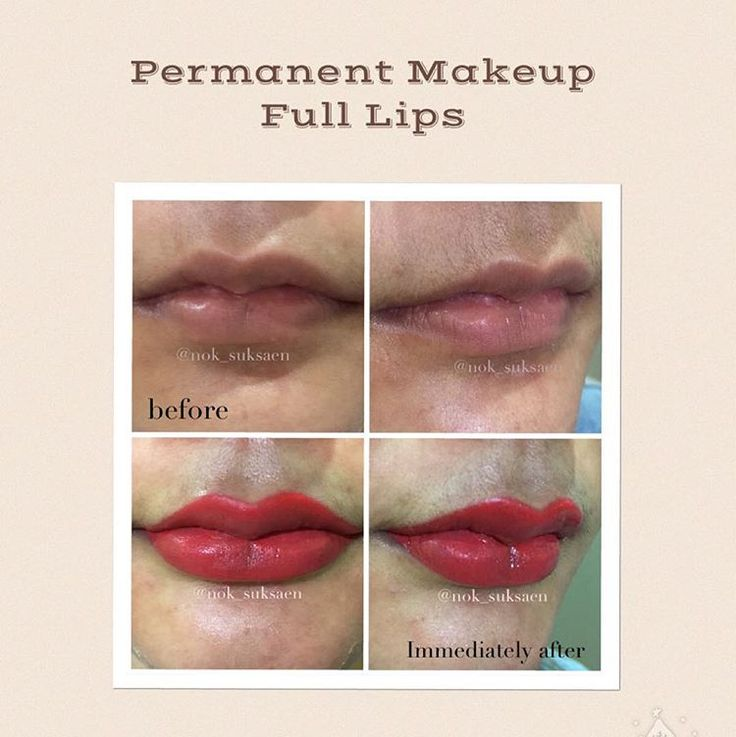 how to get full lips at home