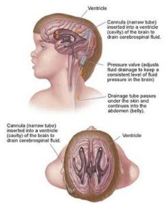 http://deagarictop.com/pengobatan-tradisional-penyakit-hidrosefalus/