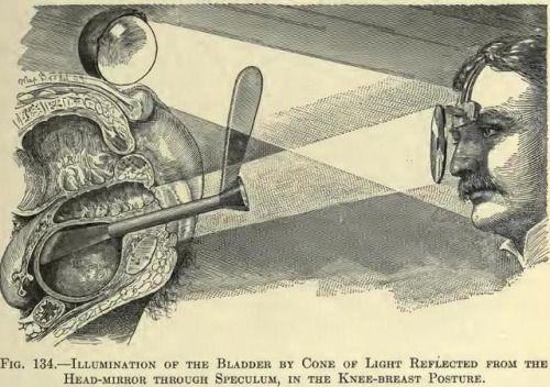 Fig. 134. Illuminatiion of the bladder…  [Howard Atwood Kelly:  https://pinterest.com/pin/287386019946528514].
