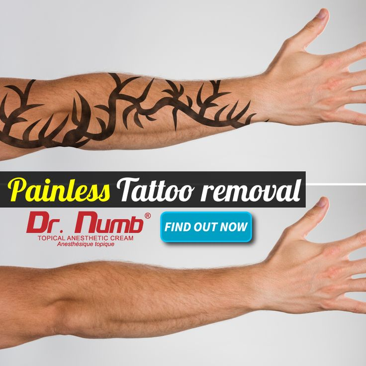 31 best painful dermal procedures images on pinterest dr for How painful is tattoo removal