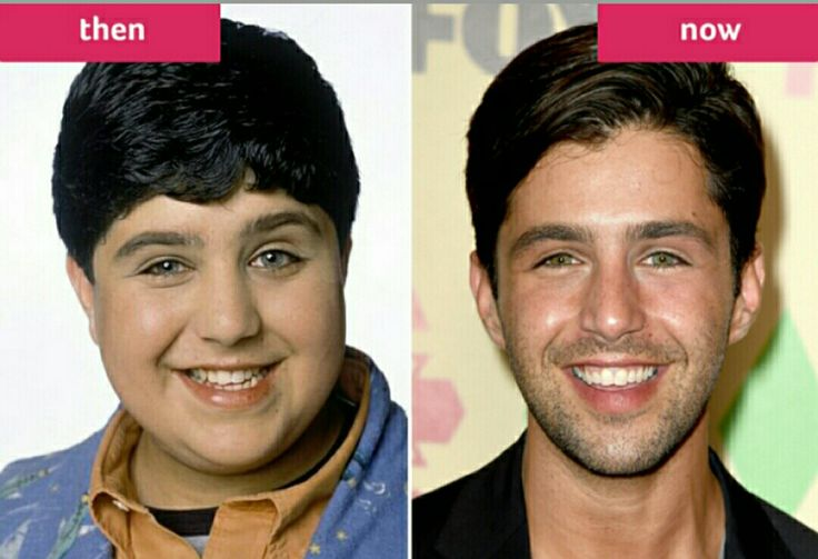 Josh Peck from Drake and Josh. He grew up nicely!!