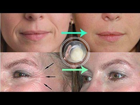 Fio de ácido polilático promete levantar a pele e minimizar a flacidez - YouTube
