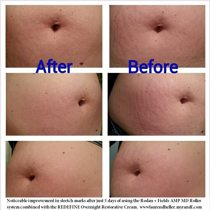 Stretch mark cream works on facial wrinkles