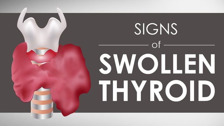 Signs of Swollen Thyroid I 5