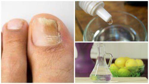 Nagelschimmel is een vervelend probleem, dat ernstig kan worden als het niet wordt behandeld. Gelukkig zijn hier natuurlijke middelen voor.
