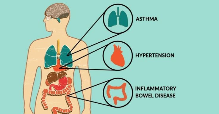 7 diseases that can be caused by vitamin D deficiency