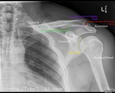 Rockwood classification of acromioclavicular joint injury: annotated radiographs | Radiology Case | Radiopaedia.org